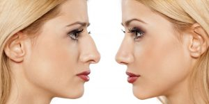 How long does it take for a nose job to heal fully?