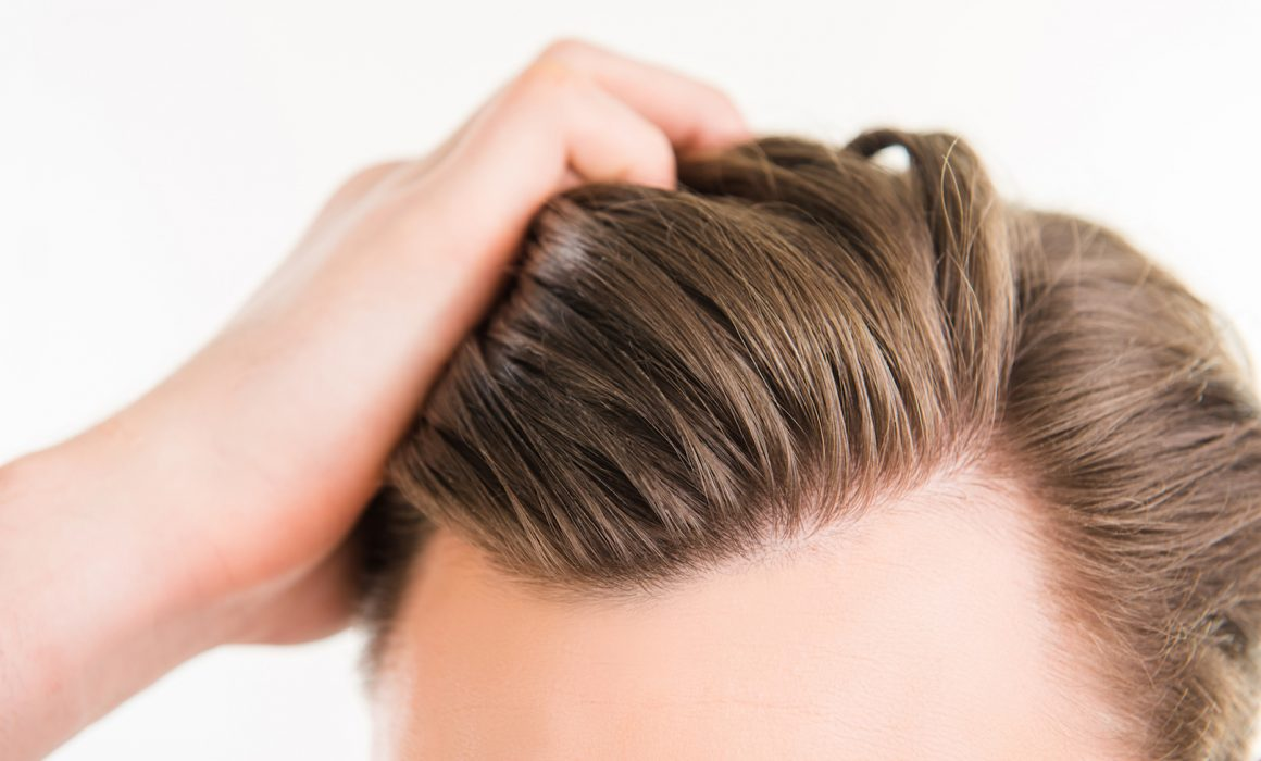 who is ideal for hair transplnat?